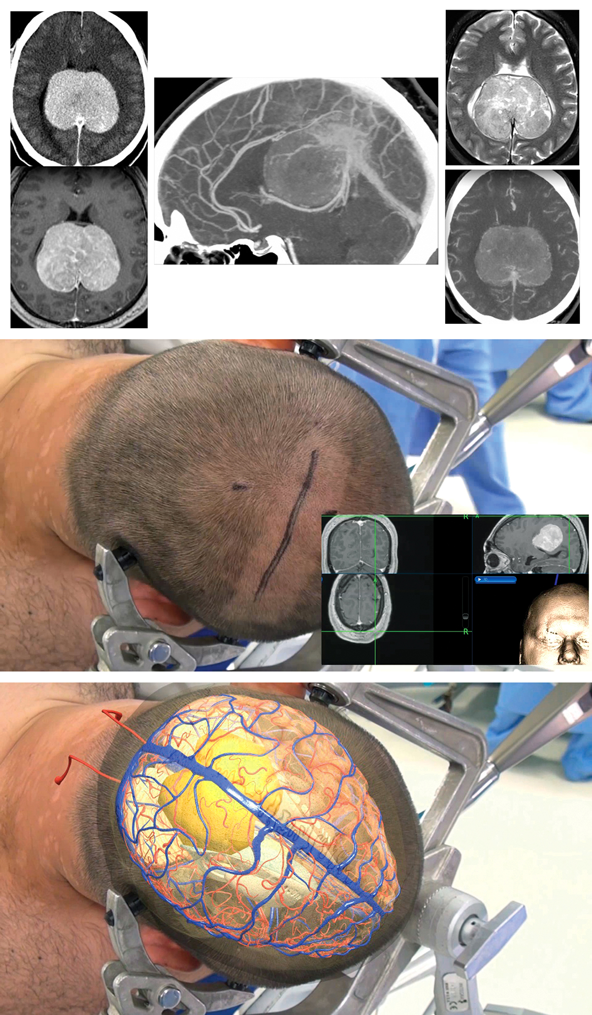 Figure 3: A giant parafalcine tumor (top images) was approached through a unilateral linear incision and transfalcine route using gravity retraction. The lateral position mobilizes the dependent nondominant hemisphere away from the midline (middle image). The location of the tumor is illustrated through the overlay model (bottom image).