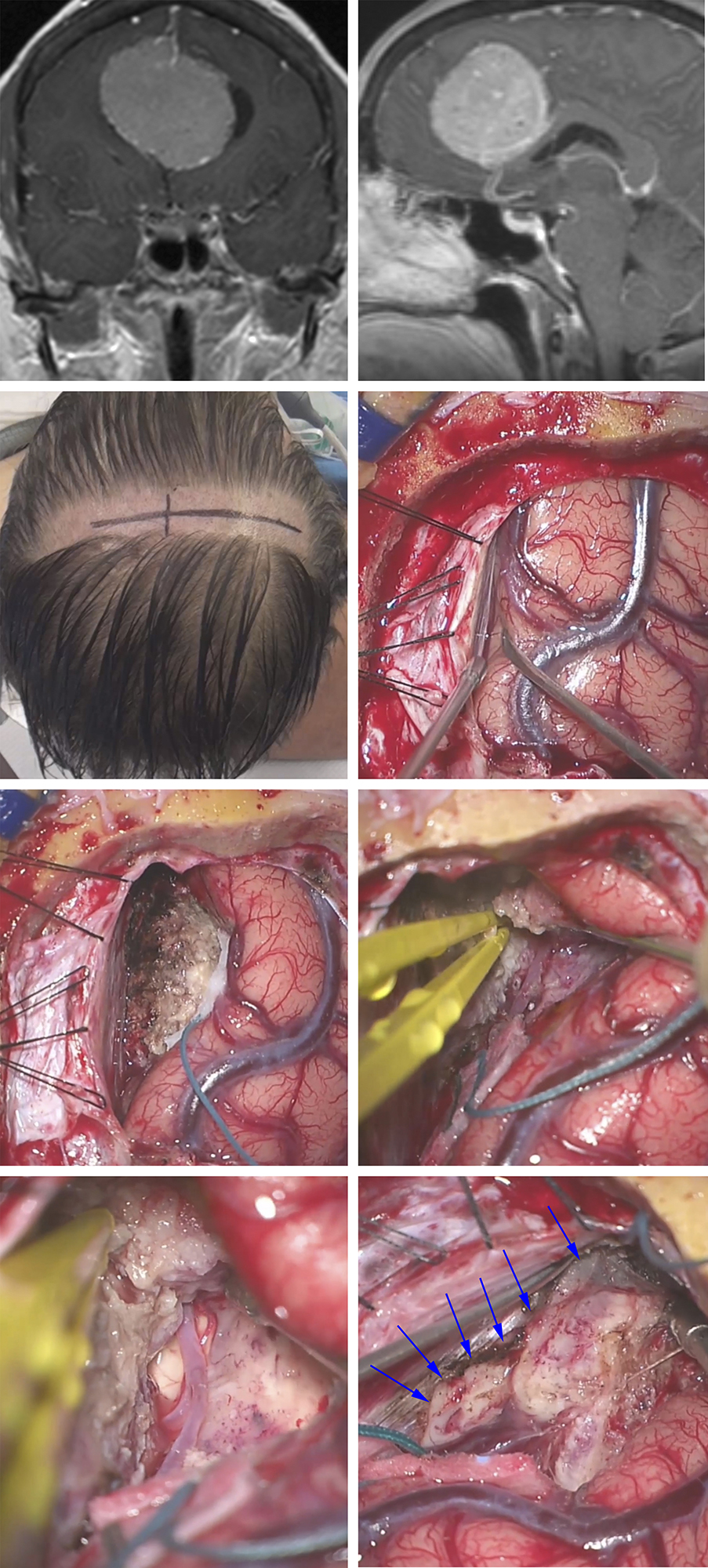 Figure 8: This bilateral parafalcine meningioma (upper row) was removed via a unilateral right-sided parasagittal transfalcine approach. Traction sutures in the superior falx (second row) gently mobilized the superior sagittal sinus. The tumor on the right-side of the falx was aggressively devascularized, debulked and the callosomarginal artery dissected (third row). Ultimately, further tumor removal uncovered the pericallosal artery and the contralateral tumor was excised via the transfalcine approach and removal of the affected section of the falx (arrows)(last row).