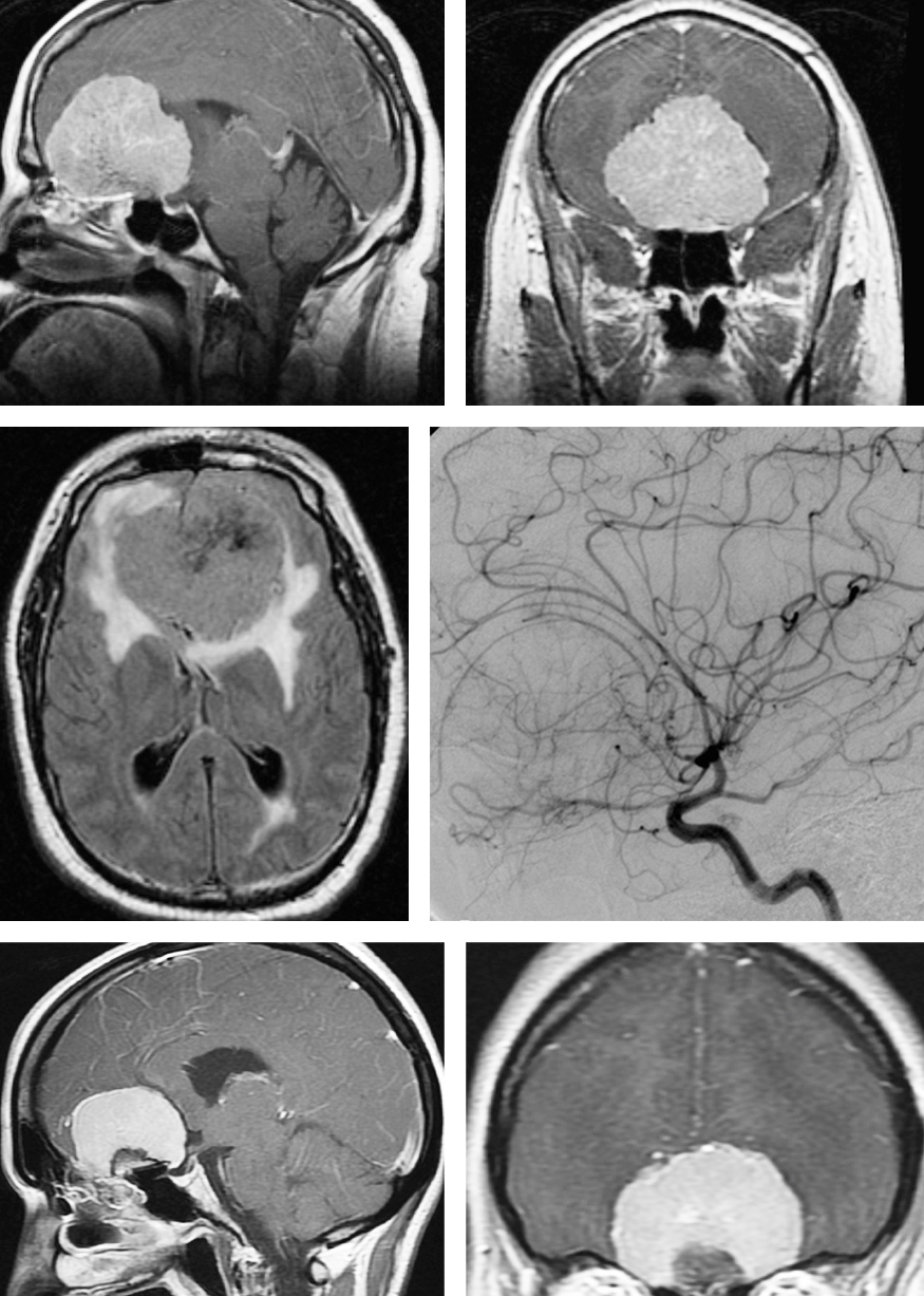 Figure 3: A large olfactory groove meningioma (upper and middle images) with associated edema is evident. Note the displacement of the frontopolar and anterior cerebral arteries on the angiogram. This tumor is best suited for a transcranial approach. If the tumor does not extend significantly beyond the middle of the orbit or lateral to the optic nerves on coronal MR images, an endonasal route is reasonable (lower images).