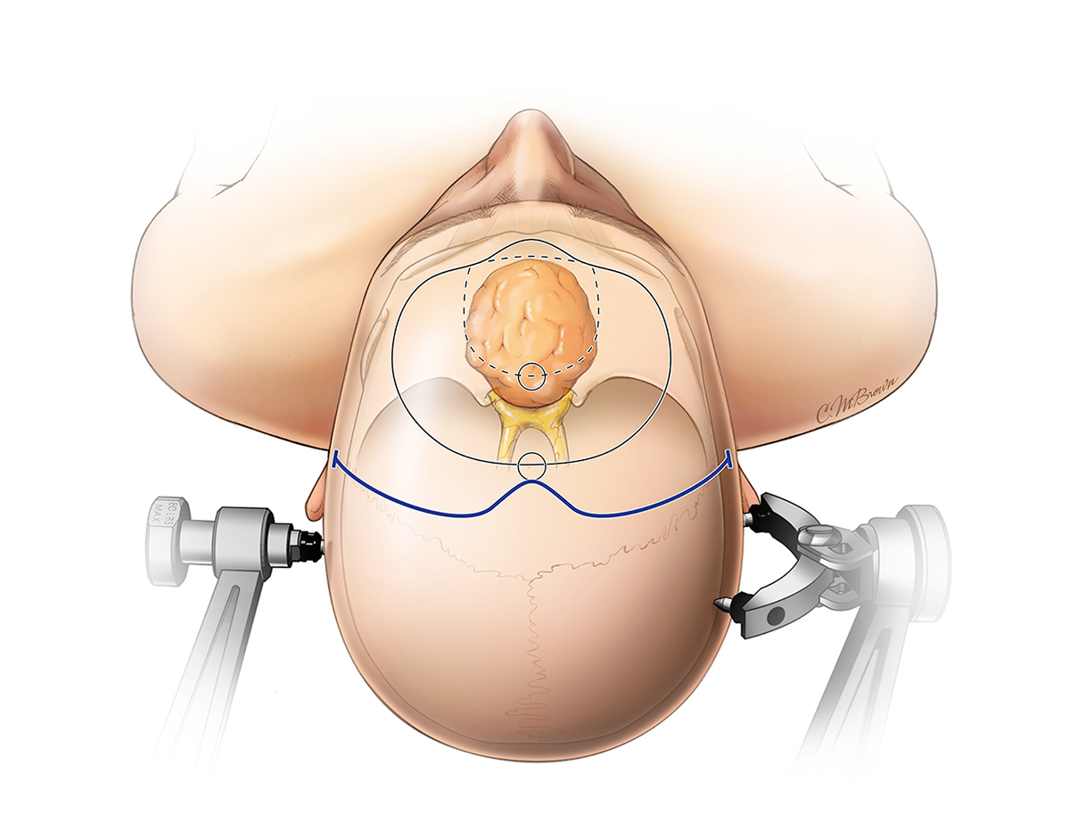 Figure 4: The details of a bifrontal craniotomy for resection of large tumors with invasion of the nasal sinuses is demonstrated. Note the two different outlines of the craniotomy, the smaller one in hashed lines is more than adequate for giant tumors.