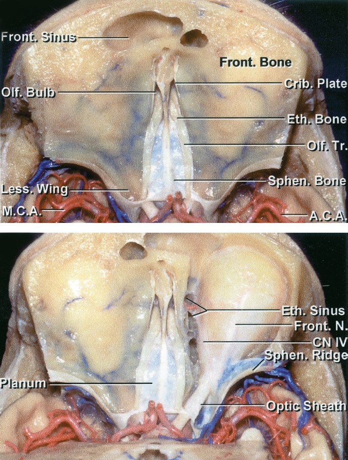 Figure 6: Superior view of the olfactory groove and its anatomic relationships to the surrounding structures is illustrated. Note the change in the horizontal level of dissection along the midline skull base compared with the roof of the orbits. This anatomic relationship should be kept in mind during devascularization of the tumor along the skull base. Anterior and posterior ethmoidal arteries are the main source of intraoperative blood loss and their early control at the base of the tumor can improve the safety and efficiency of the operation (images courtesy of AL Rhoton, Jr).