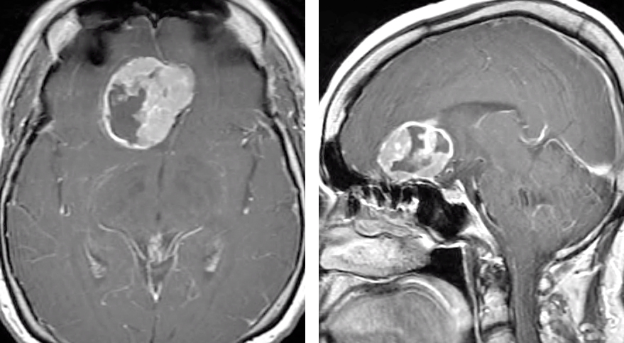 Figure 15: This patient presented with confusion and was found to harbor a large olfactory groove meningioma with associated edema.