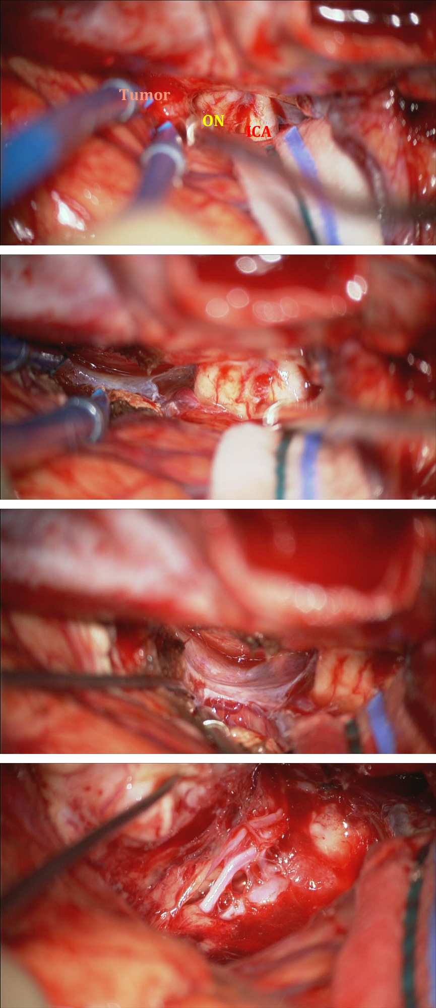 Figure 16: The intraoperative findings via a right-sided pterional cranitomy are reviewed. The first photo demonstrates the neurovascular anatomy in relation to the posterior border of the tumor. The lateral subfrontal trajectory allows early identification of the tumor base relative to the optic nerve (ON) and carotid artery (ICA). The tumor is devascularized along its base while protecting the optic nerve and ICA (second row). The base of the tumor is completely disconnected until the contralateral orbital roof and the pial surfaces of contralateral subfrontal region are evident (third row). After the tumor is debulked and removed  piecemeal , the anterior cerebral arteries and their associated branching vessels are dissected from the posterior tumor capsule.