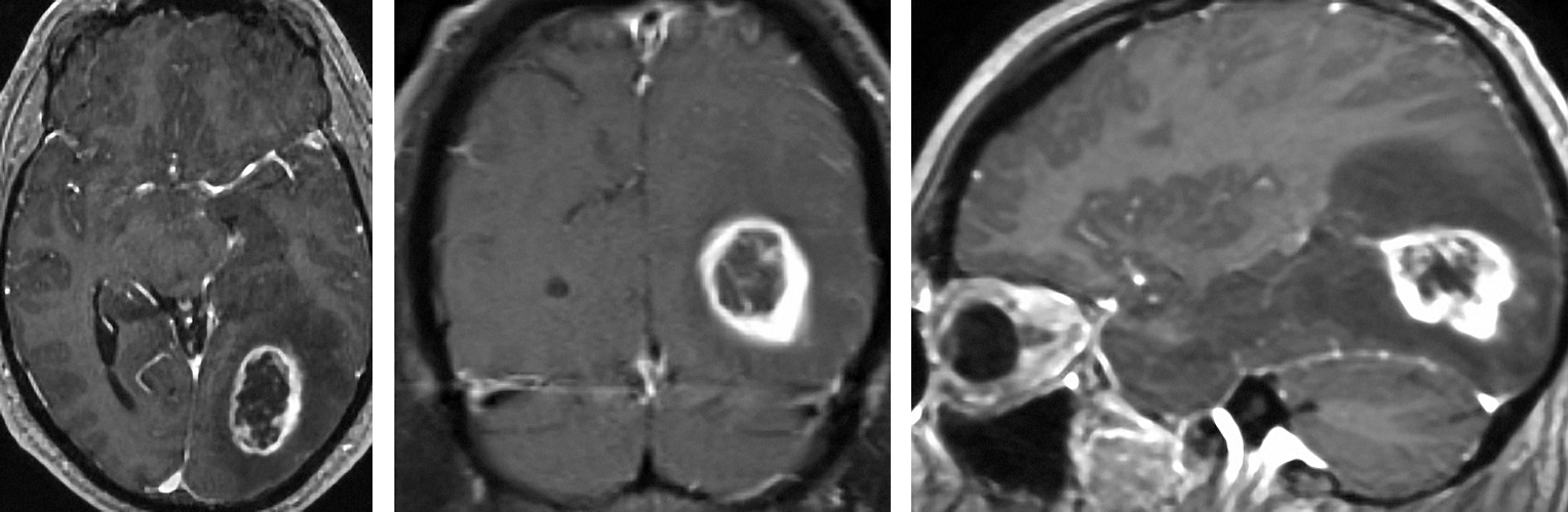 Figure 2: Typical appearance of a ring enhancing lesion consistent with a HGG in the left occipital region. Please note the tail of the tumor leading into the ventricle (right image).