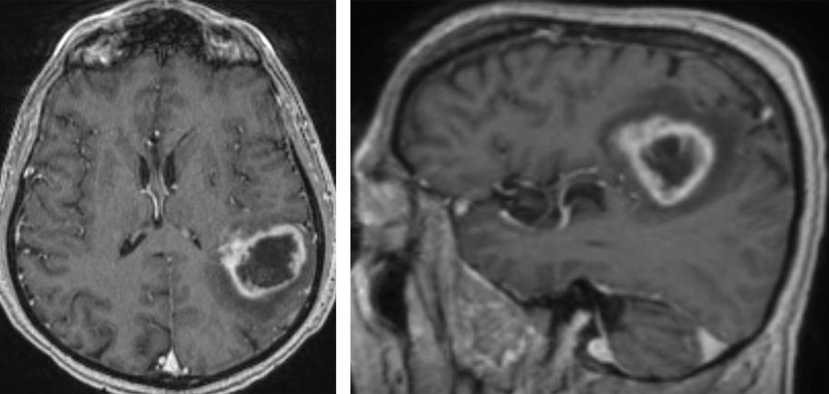 Figure 3: This 62 year-old patient presented with mild speech difficulty and was diagnosed with a HGG around the angular gyrus on imaging. In my opinion, resection of this mass, despite the use of awake mapping techniques, carries a real risk of permanent speech dysfunction. This tumor was only biopsied and further treated with adjuvant therapies.