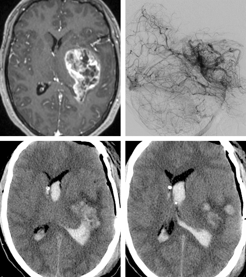 Figure 4: Highly vascular HGGs are a supermalignant class of tumors.  Their subtotal resection is highly risky.  This 26 year-old patient presented with headaches and underwent subtotal resection of her left temporal GBM (top, lateral vertebral angiogram demonstrates exuberant angiogenesis and early arteriovenous shunting).  Postoperative CT scans (bottom) demonstrated large intratumoral hemorrhage.  Although her young age supported a decision for resection, a biopsy may have been a more reasonable approach if gross total resection was deemed unlikely because of the deep extent of the tumor.
