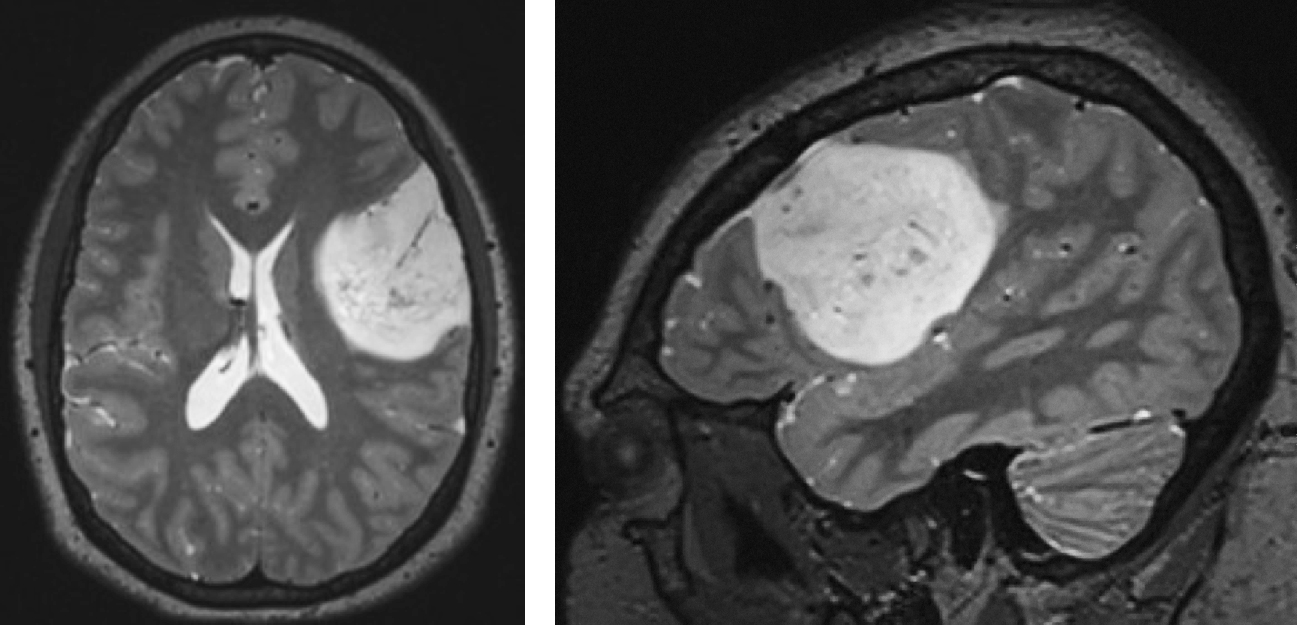Figure 2: Classic findings for a nonenhancing well-defined cortically-based LGG. Evidence of punctate calcification and a somewhat heterogeneous appearance on these T2 sequences are consistent with a diagnosis of an oligodendroglioma.
