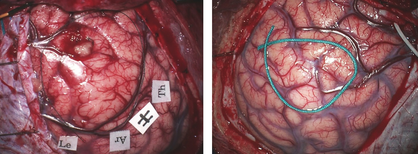 Figure 5: Cortical LGGs may (left) or may not (right) cause changes in their overlying cortical morphology. In the left image, the right frontal premotor cortices are expanded and the parasagittal veins are displaced posteriorly. The right posterior frontal tumor in the right image (bounded by the green suture) is causing minimal alteration in the cortical morphology.