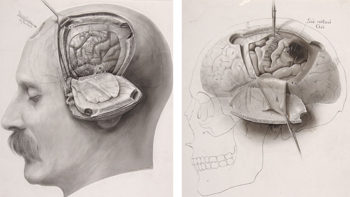 Figure 1: Cushing's own illustrations show his passion for cortical electrophysiology. Forester, Penfield, and Boldrey further refined the techniques of cortical stimulation and shaped our understanding of this method. There is some controversy if Cushing had intended to sketch the face of William Osler in the left image.