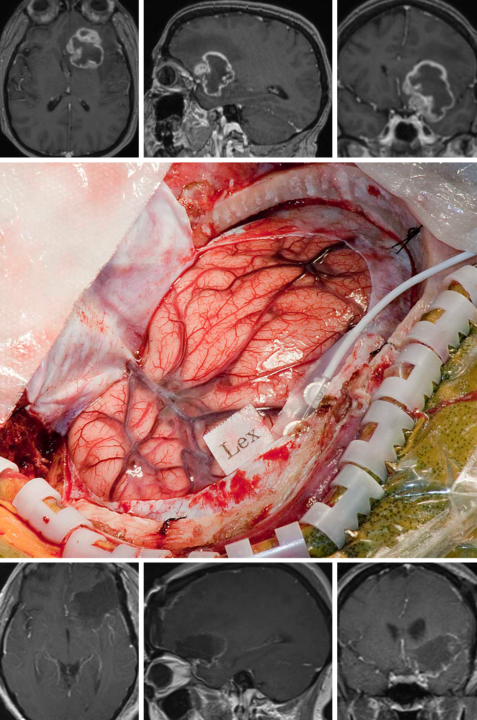 Figure 3: The deep and posteroinferior frontal location of this tumor required awake speech mapping to guide a safe transcerebral corridor to reach the tumor (upper images). Development of a neurologic deficit can blunt or eliminate any survival advantage gained by resection of this high-grade glioma. Following a left-sided craniotomy, the most inferior location of motor speech was mapped (Lex)(middle image) and a corticotomy, just anterior to this eloquent cortex, was made to reach the tumor. Ultimately, gross total resection of the tumor was performed safely (lower images).