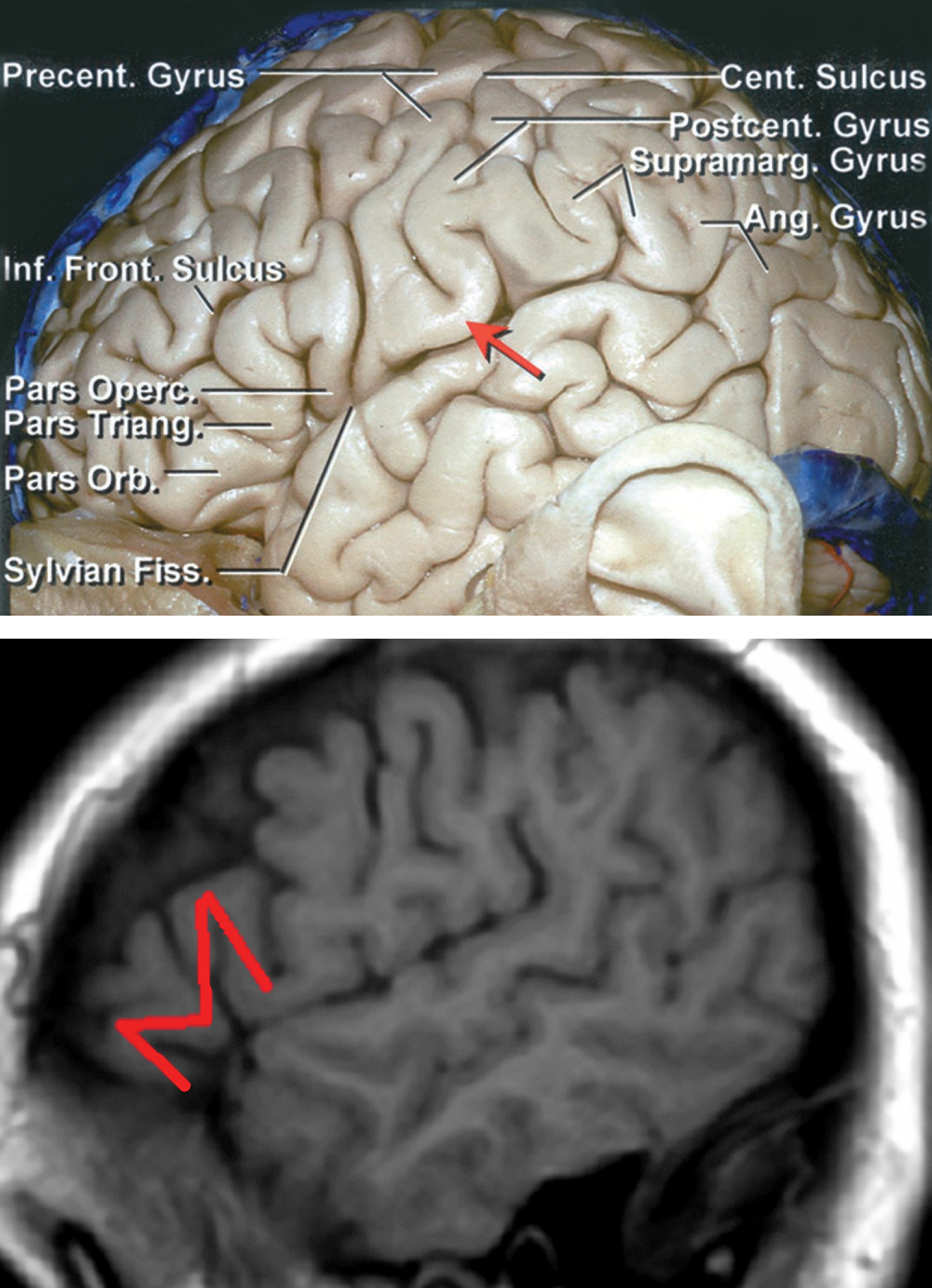 "Figure 4: Left hemisphere and cortical anatomy related to language and sensorimotor function are shown (upper image). The classic cortical sites for language function are marked. Broca's area lies in the posterior aspect of the inferior frontal gyrus. Wernicke's area includes the perisylvian region in the left temporoparietal cortices. Note that there is a gyral bridge (red arrow) between the precentral and postcentral gyri so the sensorimotor cortices do not directly open into the Sylvian fissure (Upper image courtesy of AL Rhoton, Jr).    The M-sign (lower image) signifies Broca's area and should be identified on preoperative imaging to determine its involvement with the tumor and the need for an awake surgery. The ""M"" can be identified on sagittal sequences as an M-shaped gyrus formed by the pars orbitalis, triangularis, and opercularis (lower image). This region contains the motor or expressive component of speech in 87-89% of patients.     The locations of the cortical language centers (comprehension or receptive speech) are incredibly variable.  In fact, the resections guided by purely standard anatomic landmarks (ie anterior 4 cm of the dominant temporal lobe) have led to postoperative language deficits."