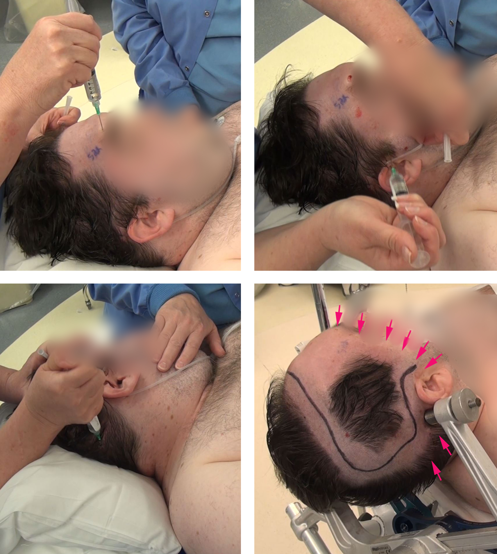 Figure 6: I use local and regional scalp anesthesia/block generously before placement of the skull clamp. The major nerve trunks supplying the ipsilateral scalp are blocked. Using generous amounts of local anesthetic (lidocaine 0.5% and Marcaine 0.25%,) I block the supratrochlear, supraorbital, auriculotemporal, and greater and lesser occipital nerves. The sites of injection for the regional scalp block are marked in red arrows (right lower image).    A copious amount of local anesthetic is also used along the planned line of incision and pin sites. The patient may also be sedated using dexmedetomidine throughout this process.