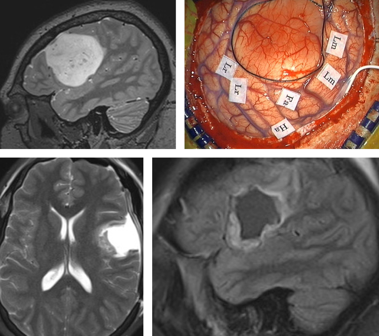 Figure 10: The preoperative MRI and intraoperative map are demonstrated (upper row). Localization of the motor speech (Lm), receptive language (Lr), Face (Fa) and hand (Ha) areas allows safe and aggressive resection of the tumor. The boundaries of the tumor are marked with a black suture. Subcortical mapping may be used at the depth of the tumor. I increase the cortical stimulation parameters by 1-2 mA to conduct subcortical mapping.  During resection within close vicinity of vital cortices and tracts, frequent intraoperative exams are performed to assess the status of the patient. This immediate feedback is important to the surgeon and encourages further resection as guided by stimulation mapping data.  Postoperative imaging demonstrates a reasonable resection of the mass (lower row). This patient did not suffer from the any deficit.