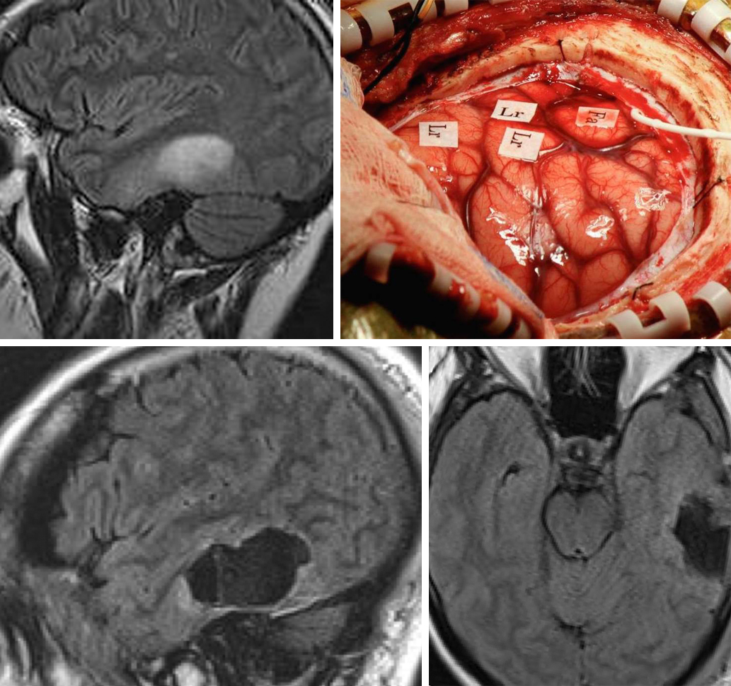 Figure 11: A left temporal low-grade glioma is located in the vicinity of the language cortices. The intraoperative map demonstrates the location of the language (Lr) and face (Fa) regions just anterior and superior to the gyri slightly expanded by the tumor (top images). Gross total resection was accomplished as guided by continuous intraoperative exams (bottom images).