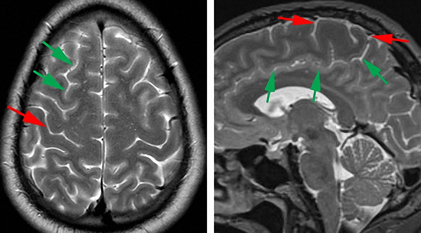 Figure 1: The radiographic landmarks for the central sulcus are demonstrated. The second, more posterior vertical sulcus, from the end of the horizontal superior frontal sulcus (green arrows) is the central sulcus (red arrow) (left image). A more reliable method is as follows: I trace the cingulate sulcus (green arrows) on midsagittal MRI images posteriorly, then superiorly (marginal sulcus) to its end. The marginal sulcus is just posterior to the rolandic cortex (central lobule) bounded by the red arrows, right image.