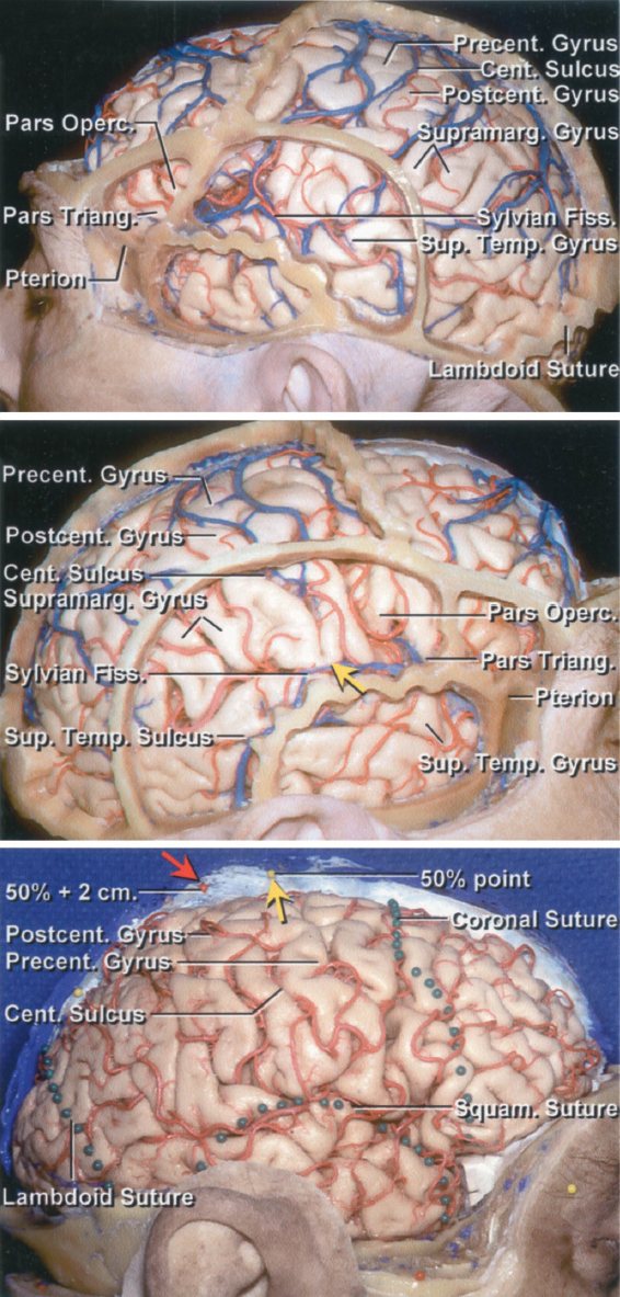 Figure 3: Relationship of the cranial sutures to the cortical surface. The central sulcus is usually 3.5 to 4.5 cm behind the coronal suture. The lower portion of the precentral gyrus is located just posterior to the pars opercularis, and the similar portion of the postcentral gyrus is immediately anterior to the supramarginal gyrus. There is a gyral ridge (yellow arrow, middle image) connecting the precentral and postcentral gyri so that the central sulcus never directly joins the Sylvian fissure. Another yellow arrow is placed along the midline at the 50% nasion-inion line, and the red arrow shows the location of the central sulcus approximately 2 cm behind this 50% point (lower image) (images courtesy of AL Rhoton, Jr). These landmarks are important during planning of the craniotomy.