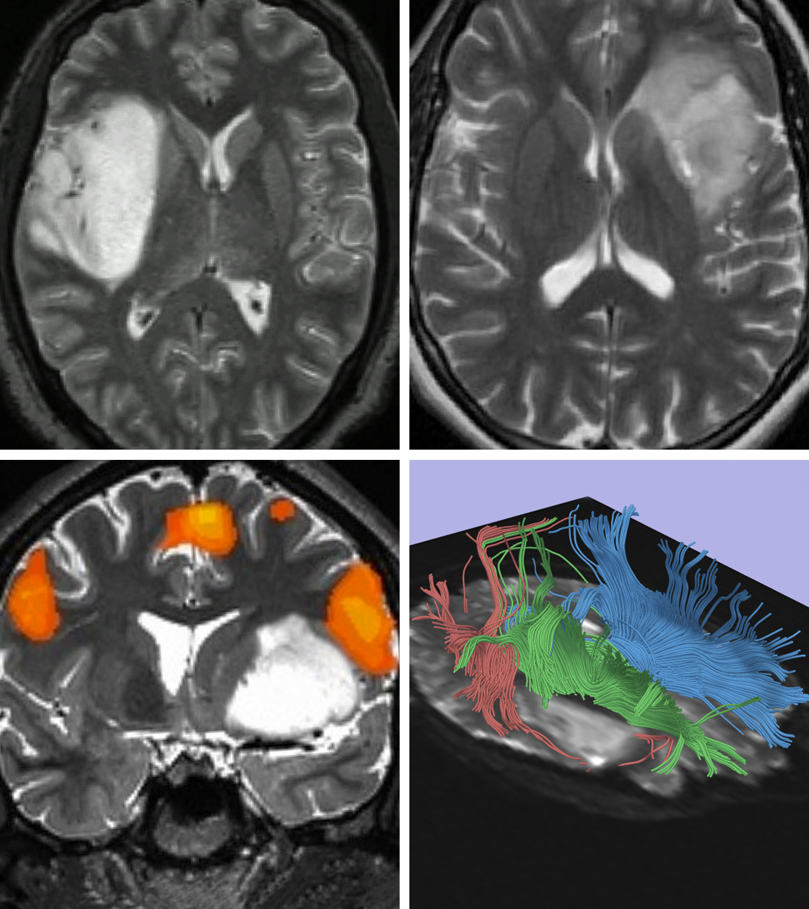 Figure 1: These images in the top row show two different patterns of insular low-grade gliomas. The upper images show the different degrees of diffuseness for tumor margins. Adequate resection of diffuse insular tumors can be very challenging and risky. Functional MRI (fMRI) and diffusion tensor imaging with fiber tracking can estimate the degree of involvement of the functional cortices and white matter tracts (lower images). In the left lower image, the motor speech area overlying the tumor is highlighted. Along with intraoperative mapping data, the fMRI information can guide the surgeon in creating safe transcortical corridors to achieve adequate tumor exposure in large tumors.