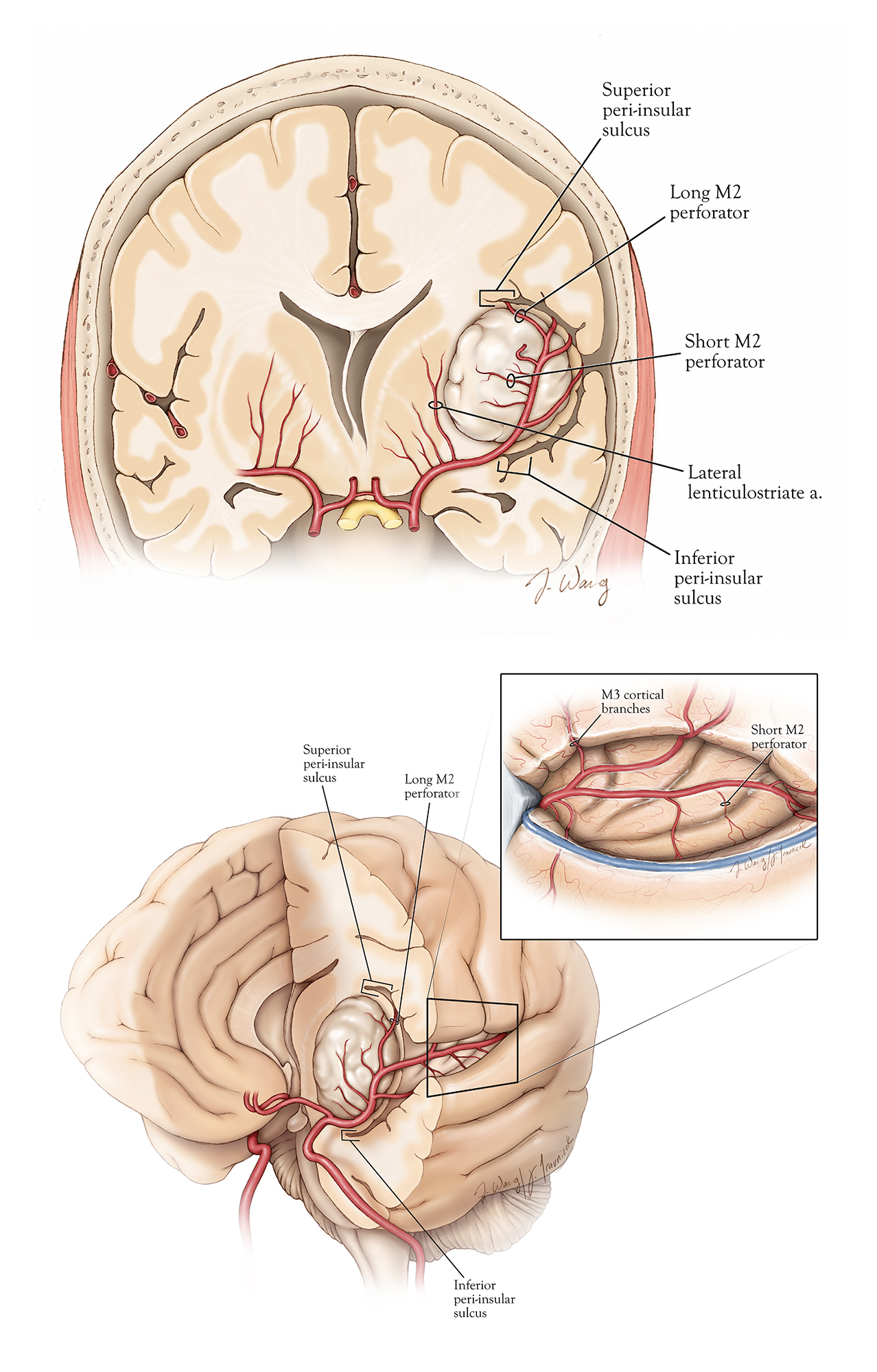 Figure 4: Topography and operative vascular relationships for insular tumors.  Note how the lateral lenticulostriate arteries originate from the M1 segment and represent the medial limit of resection.  Short M2 perforators supply the tumor.  Long M2 perforators may travel through the tumor, but most likely supply corona radiata (especially the ones travelling toward the central sulcus) and must be preserved (upper image).  The superior and inferior peri-insular sulci represent the lateral superior and inferior anatomic margins of the resection (lower image,) and their exposure ensures adequate Sylvian fissure split so that residual tumor does not hide within the blind spots of the operator.