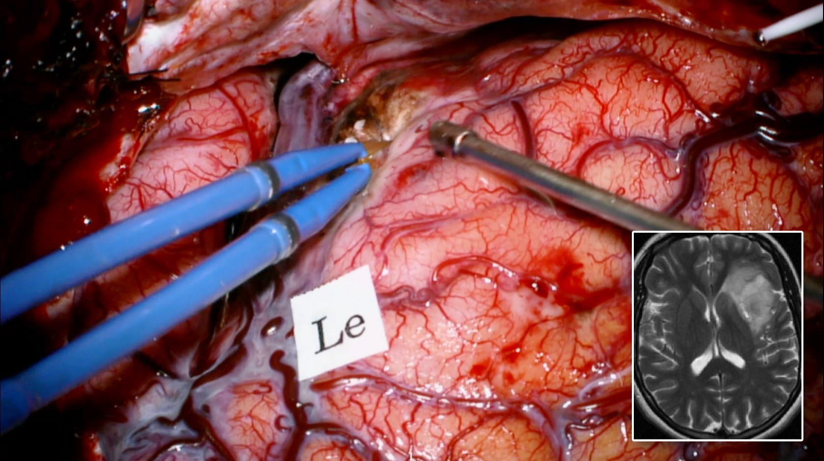 Figure 13: After initial removal of this left insular tumor (inset) through the trans-Sylvian route, the motor speech area was mapped (Le) on the inferior frontal gyrus. Additional corticotomy in the negatively mapped frontal opercula allowed further uncovering and exposure of the frontal and superior poles of the tumor.