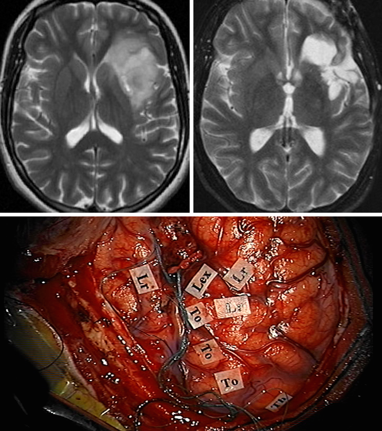 Figure 14: Resection of a diffuse dominant insular tumor through a combined trans-Sylvian and transcortical approach is demonstrated. The left and right upper images demonstrate the pre- and postoperative images and corresponding extent of resection. The lower photo illustrates the functional map in preparation for creating corticotomies within the inferior frontal and superior temporal gyri to reach the extensions of the tumor underneath the opercula.