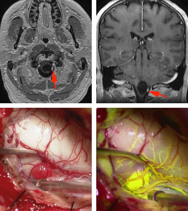 Figure 4: A cystic hemangioblastoma of the medulla oblongata is shown in the upper MR images (red arrows). Intraoperative findings, including fluorescein angiography, demonstrate the angioarchitecture of the feeding arteries and draining veins of the malformation (lower photos).