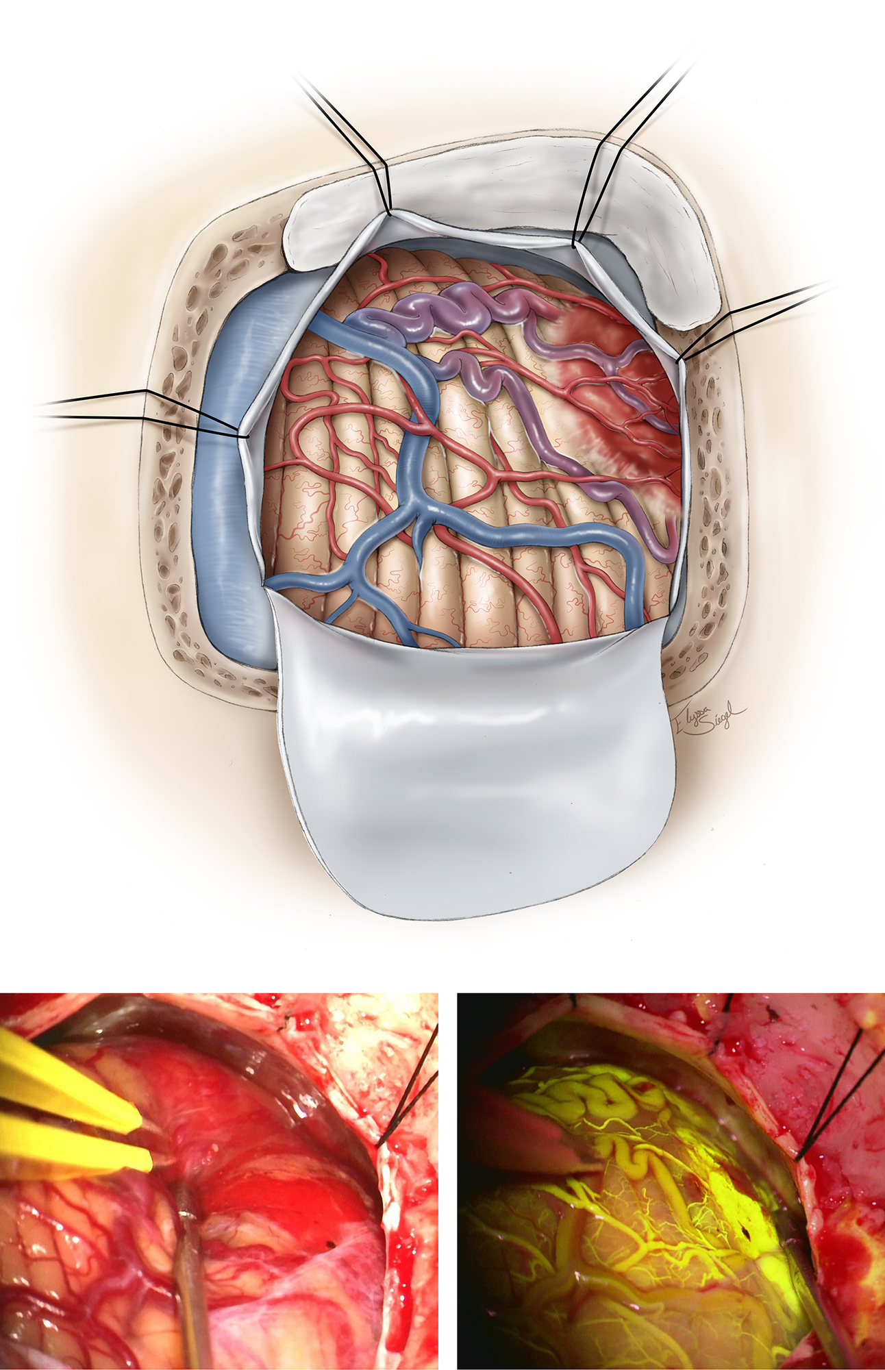 Figure 5: Intradural exposure and identification of the nodule. Nodules may protrude through the cerebellar cortex or reside just under the surface while discoloring the pial surface and recruiting feeding arteries and draining veins. They may be deep and difficult to find if the cyst wall is collapsed. If the nodule is not on the surface, but instead on a deeper aspect of the cyst, it may be flattened or nondistinct in color or shape, making it challenging to localize. The feeding arteries and draining veins of the nodule, reminiscent of an AVM angioarchitecture, are apparent (upper image). The vascular anatomy of the lesion is better demonstrated through fluorescein angiography (right lower image). The nodule is uniformly highlighted.