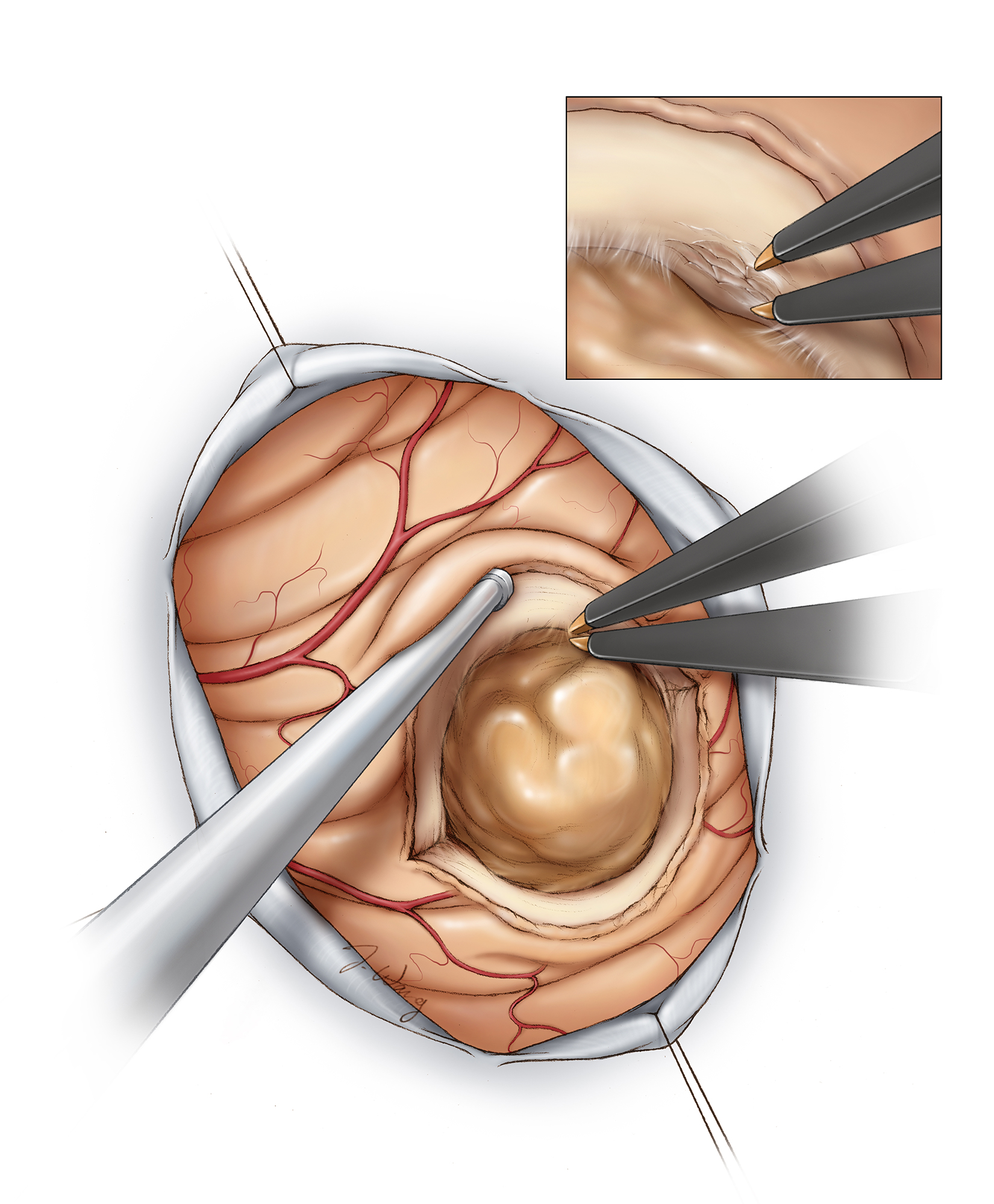 Figure 10: Once the posterior capsule is exposed, I use bipolar forceps to coagulate and disconnect the tumor capsule. I used these forceps like scissors and repeatedly open and close their tines to coagulate/emulsify 2-3 mm of the immediate peritumoral tissue, effectively devascularizing and isolating the mass (inset image). The suction device dynamically mobilizes the surrounding brain.