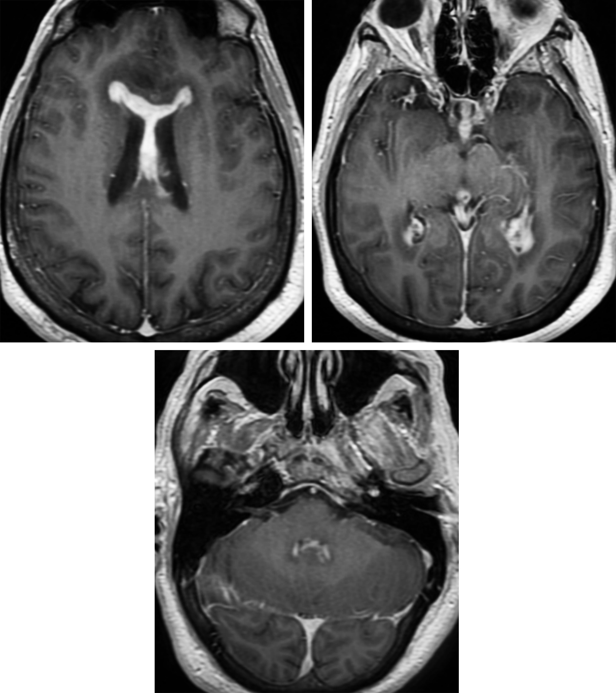 Figure 2: The homogenously enhancing lesion is based on the intraventricular septum and rostrum of the corpus callosum (top left). Enhancement consistent with leptomeningeal metastasis is also demonstrated within the bilateral dependent portion of the lateral ventricular atrium (top right). Leptomeningeal enhancement is also demonstrated within the fourth ventricle (bottom).