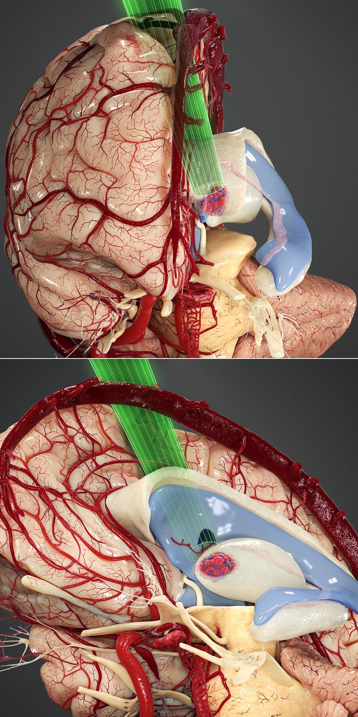 Figure 14: Operative corridor for the contralateral transcallosal expanded transforaminal transvenous transchoroidal route to the medial anterior thalamus.
