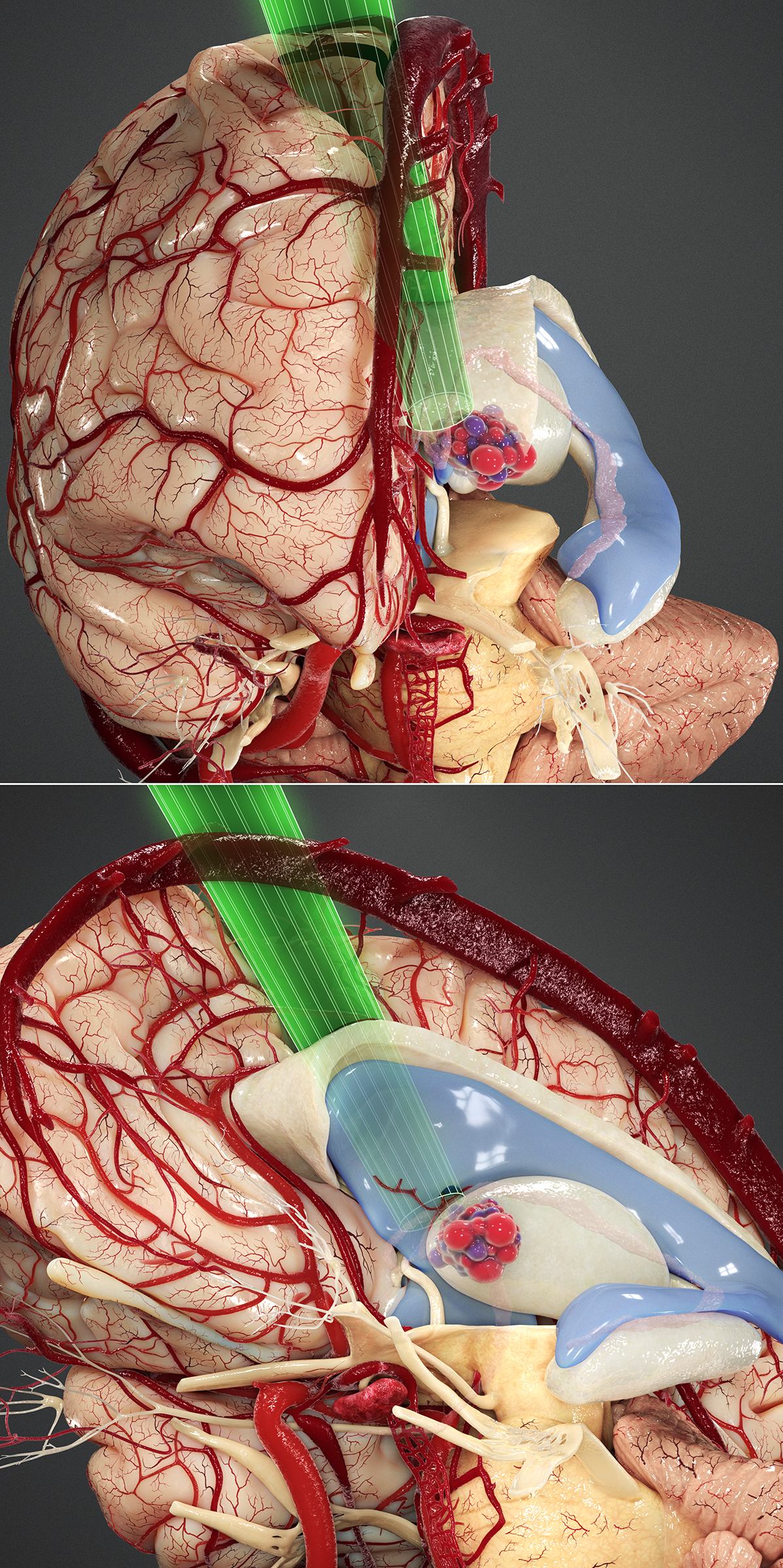 Figure 18: The more lateral anterior thalamic tumors are also approached via the contralateral transcallosal expanded transforaminal transvenous transchoroidal route