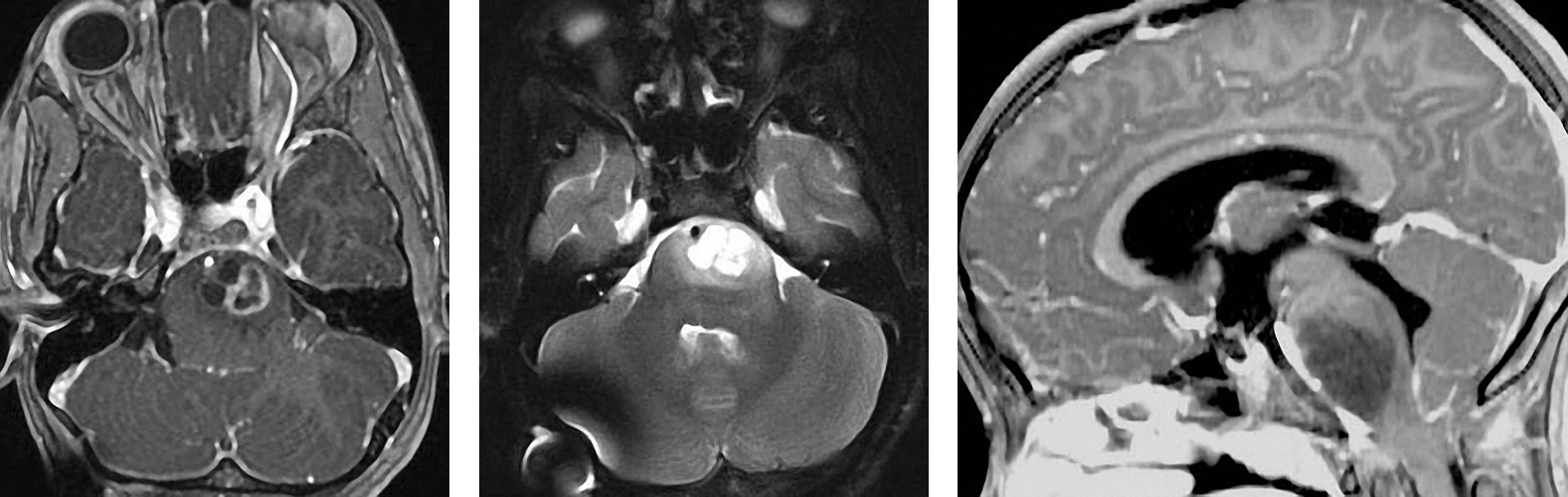 Figure 1: An example of a diffuse pontine glioma. Please note the diffuse nature of the tumor affecting the pons (right image).