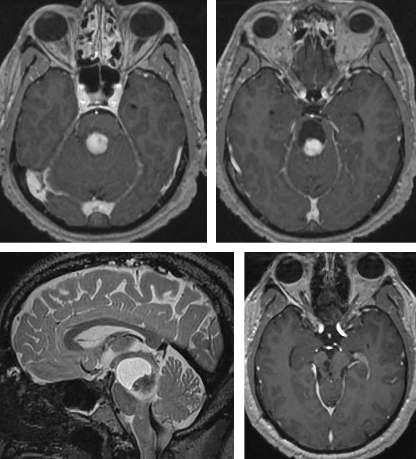 Figure 2: Focal cystic brainstem pilocytic astrocytoma of the pons and midbrain is demonstrated. Gross total resection was feasible (right lower image) through a left paramedian supracerebellar approach.
