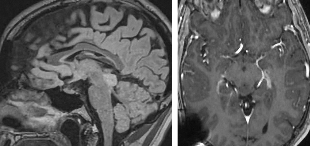 Figure 4: A typical tectal glioma is evident. Note the benign imaging appearance of this lesion confined to the tectum.
