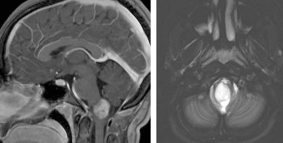 Figure 6: A dorsally exophytic lower pontine glioma is apparent. In this patient, most of the tumor is within the brainstem, excluding the likelihood of significant benefits from operative intervention.