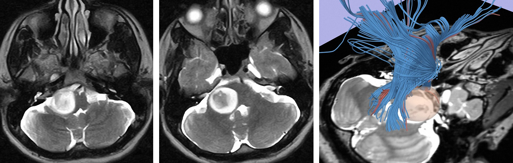 Figure 8: A lateral exophytic pontomedullary low-grade glioma is apparent. The patient was asymptomatic and this tumor was managed expectantly. Note the displacement of the brainstem fibers by the tumor on diffusion tensor imaging (right image).