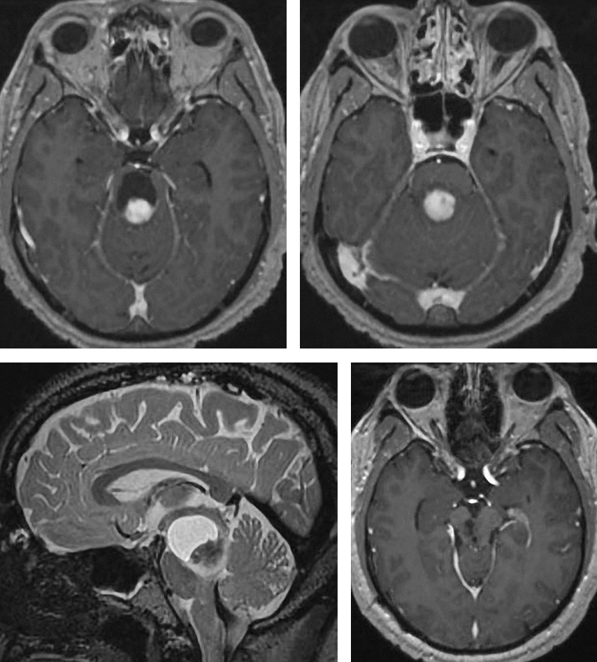 Figure 1: Focal cystic brainstem pilocytic astrocytoma of the pons and midbrain is demonstrated. Gross total resection was feasible (right lower image) through a left paramedian supracerebellar approach. Please see the following illustrations for the operative methodology.