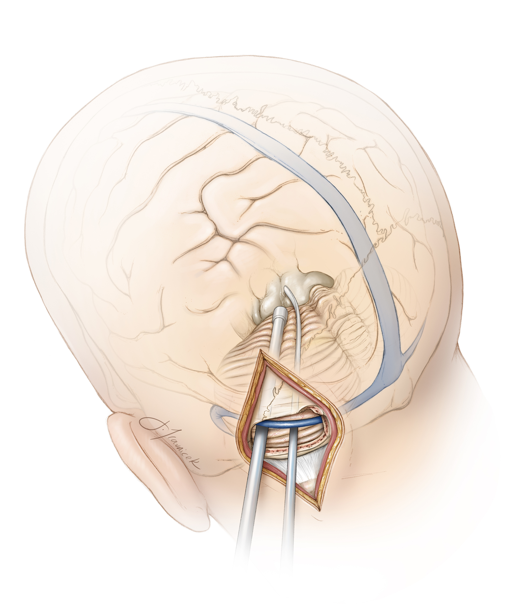 """Figure 2: The """"cross court"""" paramedian trajectory to midline dorsal mesencephalic and pontine tumors is beneficial since the tentorial surface of the cerebellum is highest along its anteromedial apex and slopes down laterally. Therefore, the lateral paramedian operative corridor provides a more inferior trajectory as compared with the midline trajectory to access the inferior extension of pontine tumors."""