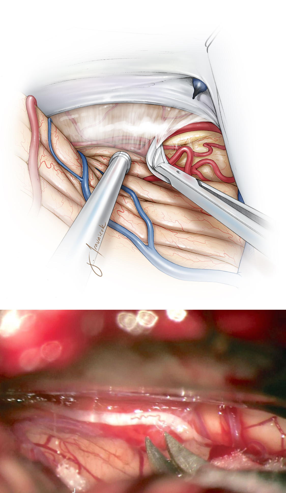 Figure 3: Dissection of the arachnoid membranes over the dorsolateral mesencephalon will mobilize the cerebellum downward and open the corridor toward the midline. The trochlear nerve is evident in the inferolateral corner of the exposure.