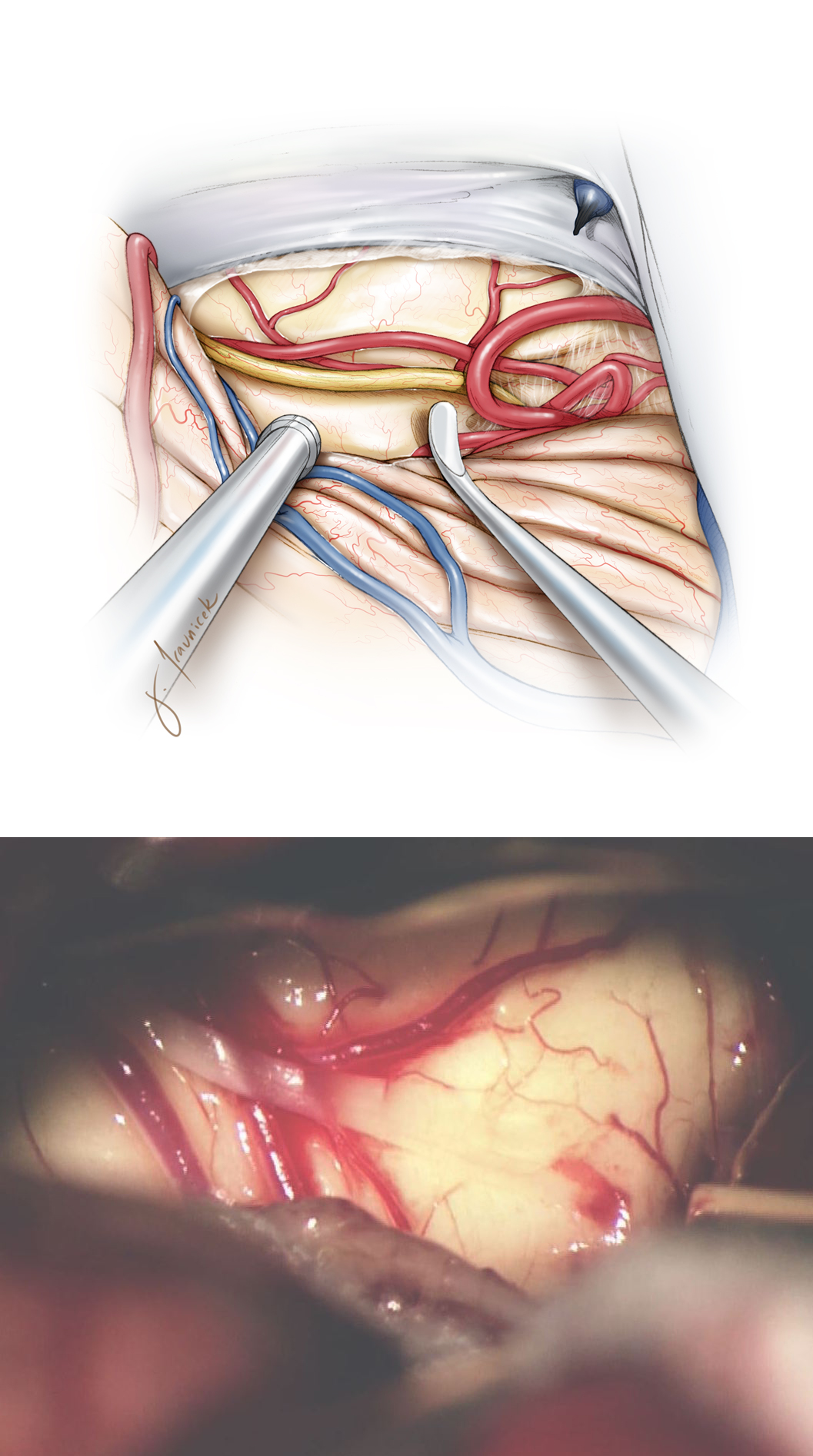 Figure 4: The trochlear nerve is identified. A supratrochlear or infratrochlear working channel is selected based on the location of the lesion to the nerve. Intraoperative navigation is important for this tumor localization. The branches of the superior cerebellar artery are protected.