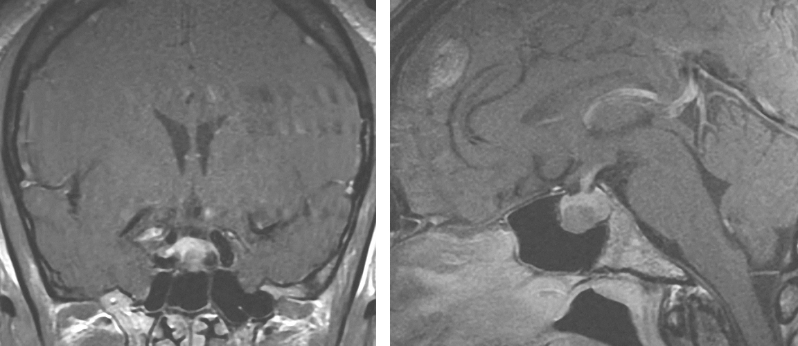 Figure 3: A  pituitary microadenoma  causing acromegaly is demonstrated on coronal and sagittal sequences. The tumor is hypointense compared to the pituitary gland.