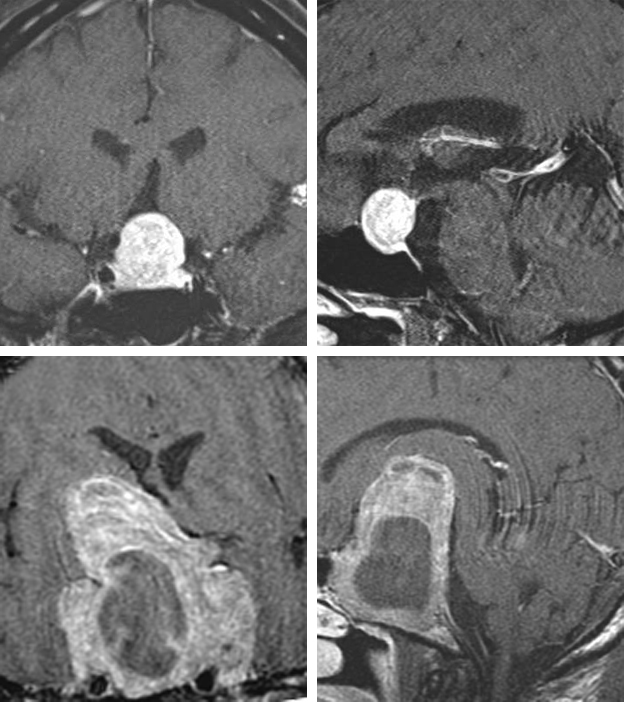 Figure 4:  Pituitary macroadenomas  typically presents with optic apparatus compression (top images) and can reach a giant size (bottom images).