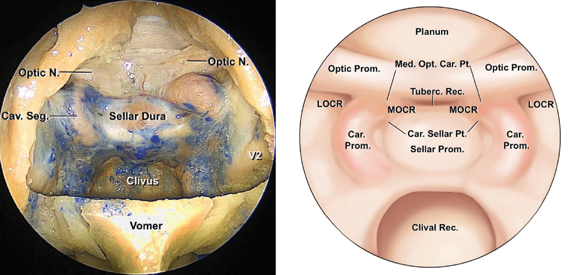 Figure 2: The medial opticocarotid recess is an important landmark because it represents the ventral aspect of a pneumatized middle clinoid process. It also marks the medial aspects of the parasellar carotid canal and the cavernous sinus, the lateral edge of the sella, and the inferomedial aspect of the optic nerve. The medial opticocarotid recess is the most lateral extent of the tuberculum sellae, and removal of bone over this landmark widens intradural exposure and allows the surgeon to work from normal anatomy toward pathologic anatomy by early identification of the optic nerves and the paraclinoid internal carotid artery (ICA), followed by visualization of the opticocarotid cistern and the supraclinoid ICA (Car., carotico, carotid; LOCR, lateral opticocarotid recess; Med., medial; MOCR, medial opticocarotid recess; Opt., optico; Prom., prominence; Pt., point; Rec., recess; Tuberc., tuberculum)(images courtesy of AL Rhoton, Jr).