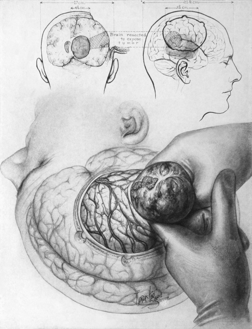 Figure 1: Walter Dandy demonstrated manual removal of a large ventricular tumor through the parietal transcortical approach (Dandy WE.  The Brain . Hagerstown, MD: W.F. Prior Company, 1966.) Dandy pioneered techniques for conquering the surgery of the ventricular system.
