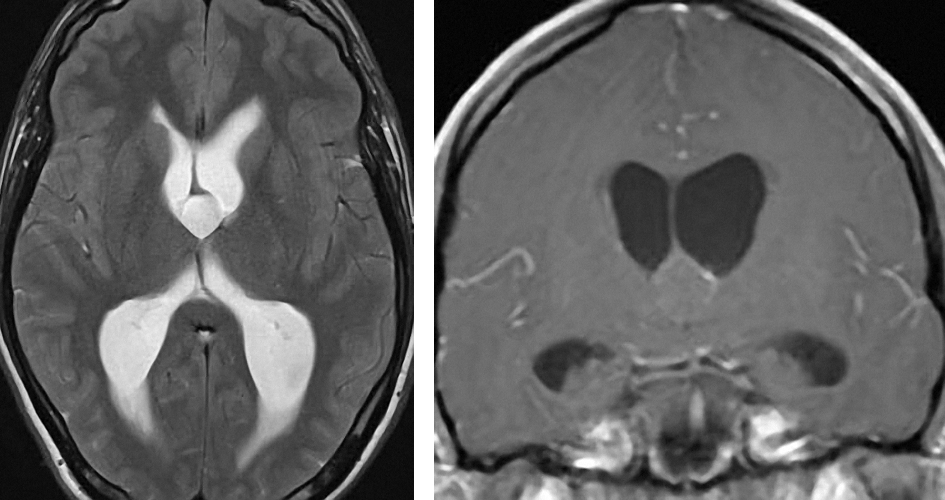 Figure 1: Colloid cysts do not usually enhance but demonstrate T1 isointensity. On T2 weighted images, they show hyperintensity compared to the white matter with a circumferential rim of hypointensity.