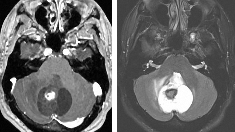 Figure 3: A vermian pilocytic astrocytoma with extension and compression of the fourth ventricle is demonstrated. The tumor is cystic with an enhancing nodule. The wall is not enhancing and does not require removal.