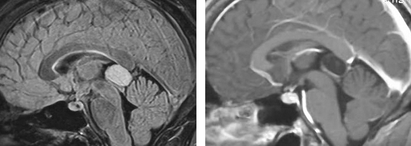 Figure 4: A pineocytoma demonstrates T2 hyperintensity and contrast enhancement at its periphery. Pineocytomas typically grow slowly and occasionally require operative intervention.