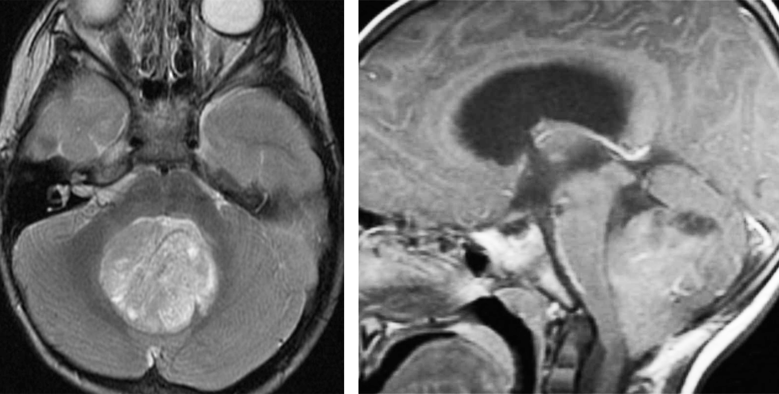 Figure 5: Medulloblastomas are hypointense to grey matter on T1 and often heterogeneously enhance. On T2 sequences, they also appear heterogeneous due to calcification, necrosis and cyst formation.