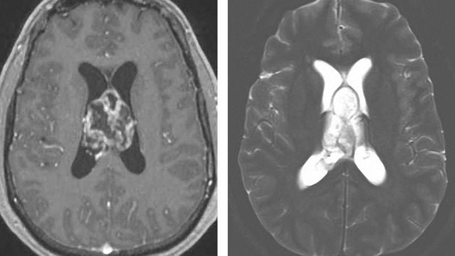 Figure 6: High-grade gliomas heterogeneously enhance with irregular borders and nodules. They also appear hyperintense on T2 sequences. Tumors of the septum pellucidum can mimic neurocytomas.
