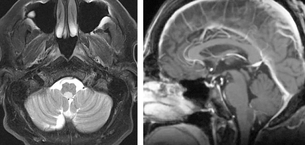 Figure 7: Subependymomas do not enhance significantly and are hyperintense to adjacent white and grey matter on T2 weighted images. On T1 images, they are iso- or hypointense. The lesion on the above images is located at the floor of the fourth ventricle.
