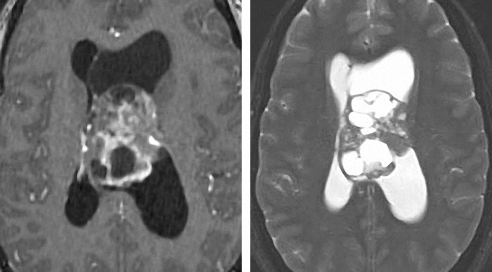 Figure 9: Neurocytomas demonstrate heterogeneous enhancement patterns and appear iso- to hyperintesne on T2 weighted images. They originate from the septum pellucidum.